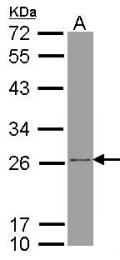 GTX102980 - ATP5F1