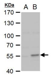 GTX102996 - Collagen type I alpha 2 chain