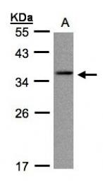 GTX103004 - Gamma-crystallin C