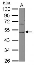 GTX103011 - SERPINH1 / HSP47