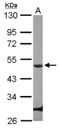 GTX103045 - Cyclin E1