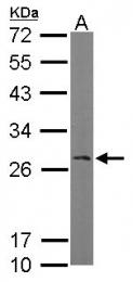 GTX103192 - RANBP1