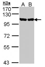 GTX103203 - Endoplasmin / HSP90B1 / TRA1