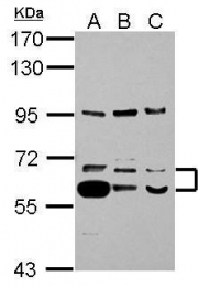GTX103207 - Thioredoxin reductase 1 / TXNRD1