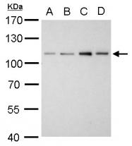 GTX103219 - Alpha-actinin-2 / ACTN2