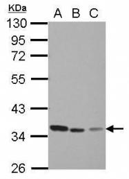 GTX103235 - Thymidylate synthase (TS)