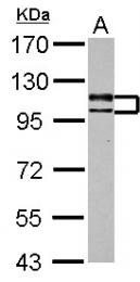 GTX103237 - USP4 / UNP