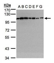 GTX103240 - Alpha-actinin-1 / ACTN1