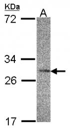 GTX103302 - IL22RA2