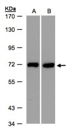 GTX103323 - Plastin 3 / PLS3