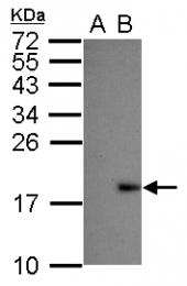GTX103343 - Dengue Virus 2
