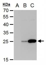GTX103349 - Dengue Virus 2