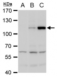 GTX103350 - Dengue Virus 2