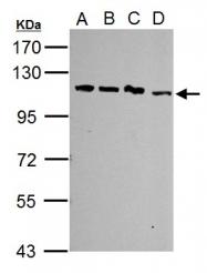 GTX103371 - SART1