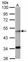 GTX103418 - CD125 / IL5RA