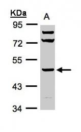 GTX103419 - HYAL1 / Hyaluronidase-1
