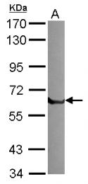GTX103453 - t-PA / PLAT