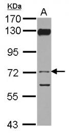 GTX103475 - Vitronectin