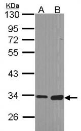 GTX103517 - Monoglyceride lipase