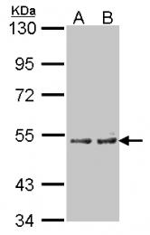 GTX103518 - CYP4A11