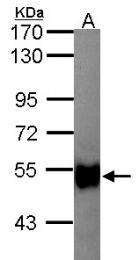 GTX103519 - Glycerol kinase 2