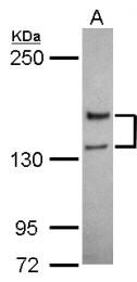 GTX103558 - NMDA Receptor 2A