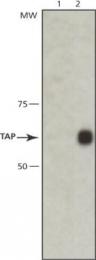 GTX10356 - ABCB2 / APT1 / TAP1