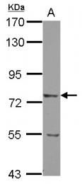 GTX103566 - LRRN2 / GAC1 / LRRN5