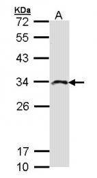 GTX103636 - Inositol monophosphatase 2 / IMPA2