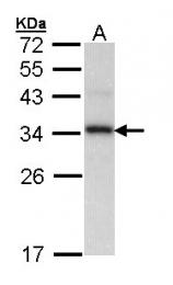 GTX103662 - Cyclophilin E