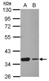GTX103673 - HSF2BP