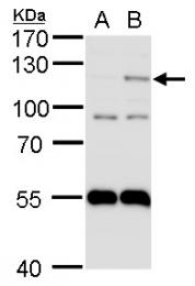 GTX103707 - HIF2A / HIF2 alpha