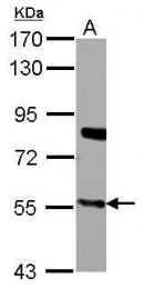 GTX103718 - CYP27A1