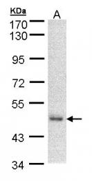 GTX103734 - DNAJA2