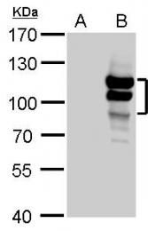 GTX103793 - L3MBTL1