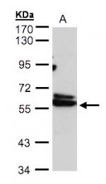 GTX103795 - CCT4 / TCP1 delta