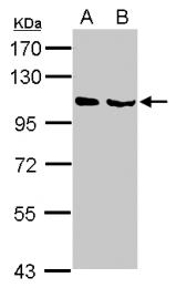 GTX103819 - NELL1