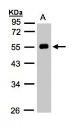 GTX103824 - Angiotensinogen