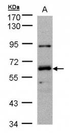 GTX103858 - DNAJC1 / HTJ1