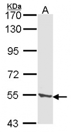 GTX103896 - Tripeptidyl-peptidase 1 (TPP1)