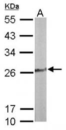 GTX103943 - Thiamine pyrophosphokinase 1 (TPK1)