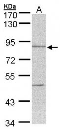GTX104000 - Thimet oligopeptidase (THOP1)