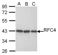 GTX104052 - RFC4 / RFC37