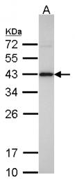 GTX104073 - Isocitric dehydrogenase alpha / IDH3A
