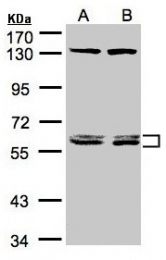 GTX104079 - DNAJC7 / TPR2