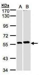 GTX104088 - PPP3CB / CALNA2