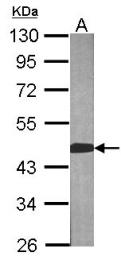 GTX104121 - BCAT2