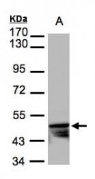 GTX104124 - Cytokeratin 14
