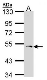 GTX104154 - PCOLCE