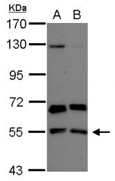 GTX104204 - PACSIN2